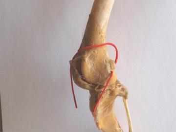 кость